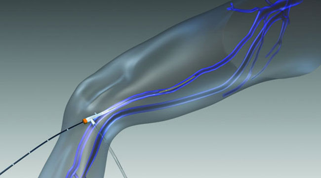 Endovenous Radiofrequency Ablation Norfolk NE